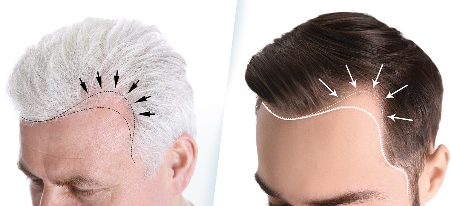 Greffe de cheveux chez l'homme. Diagnostic de la chute de cheveux ...